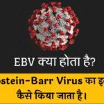 EBV क्या होता है? (Epstein-Barr Virus का इलाज कैसे किया जाता है)