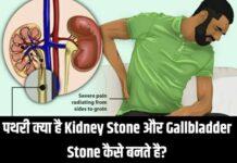 पथरी (Stone) क्या है Kidney Stone और Gallbladder Stone कैसे बनते है