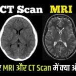 MRI और CT Scan में क्या अंतर होता है आसान भाषा मे।